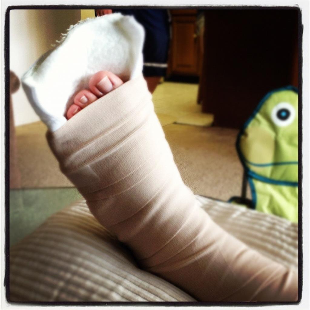 broken hip cast related keywords broken hip cast long